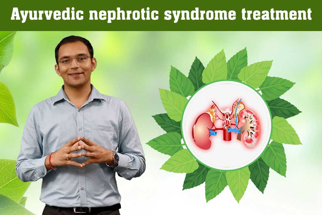 Best Nephrotic Syndrome Treatment in Ayurveda Karma Ayurveda