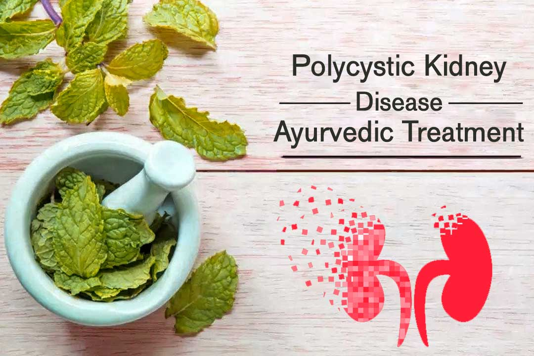 Ayurveda polycystic kidney disease treatment