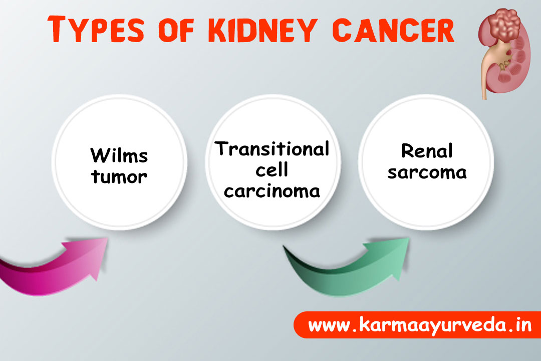 Kidney Cancer Treatment and Prognosis