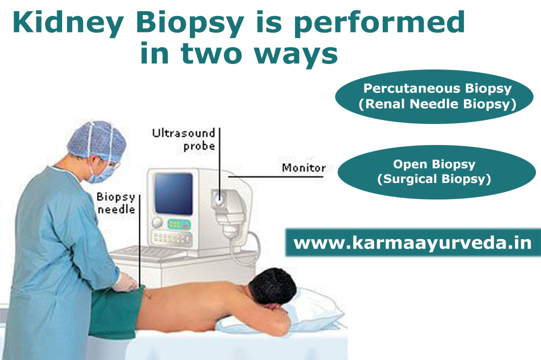 What is Kidney Biopsy?