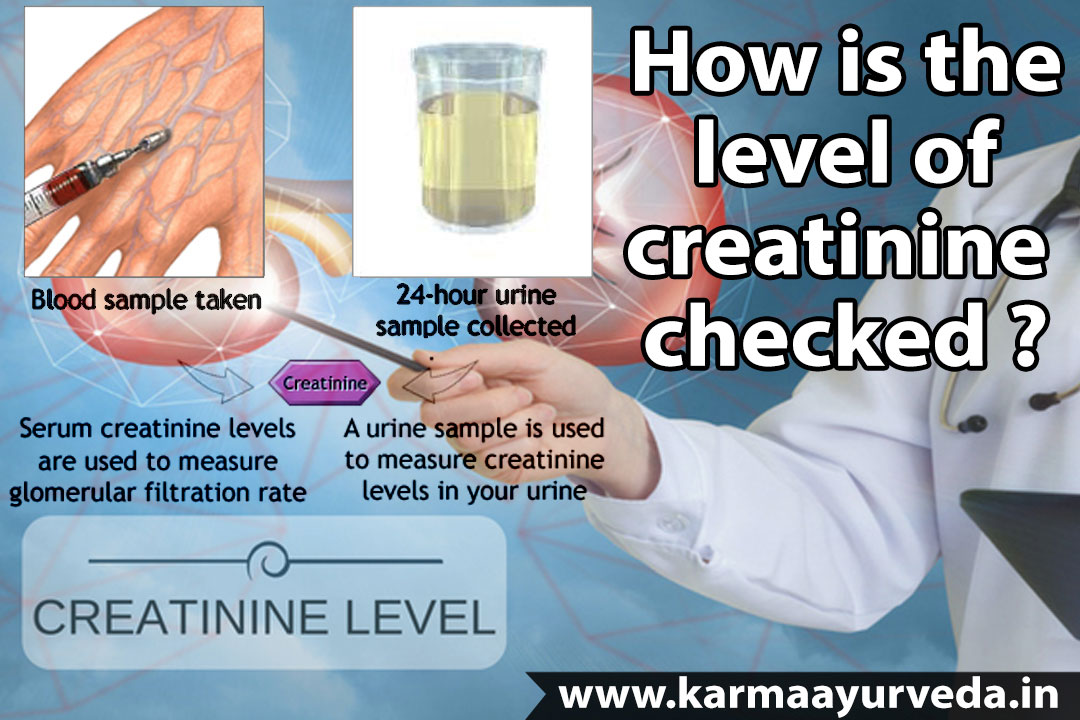 What Level Of Creatinine Indicates Kidney Failure