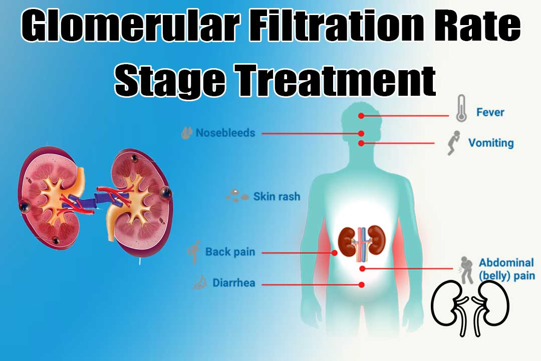 Glomerular Filtration Rate Stage 3